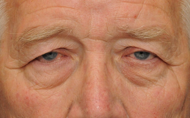 Man with sagging eyelids