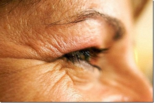 A person with wrinkles around the eyes.