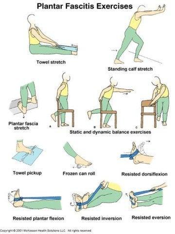 족저근막염에 운동