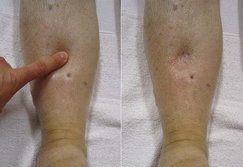 Learn about Edema
