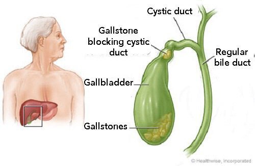 How to Know If I Have Gallstones