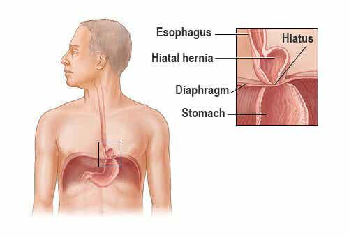 Is it Possible to Treat a Hiatal Hernia?