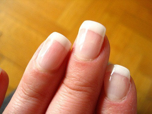 healthy nails are pinkish in color