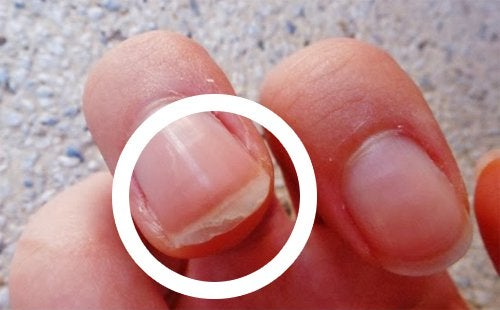 scaly nails might be a sign you should look out for