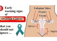 ovarian cancer warning signs