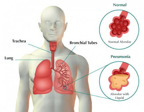 Symptoms of Pneumonia and Remedies
