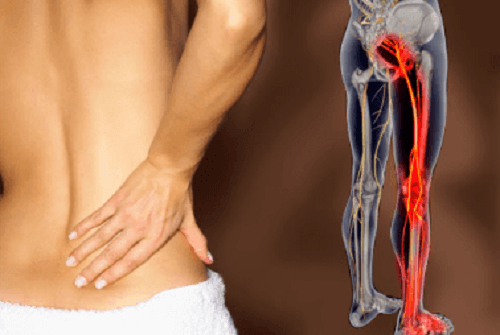 Infusions and Tips To Relieve Sciatica Symptoms