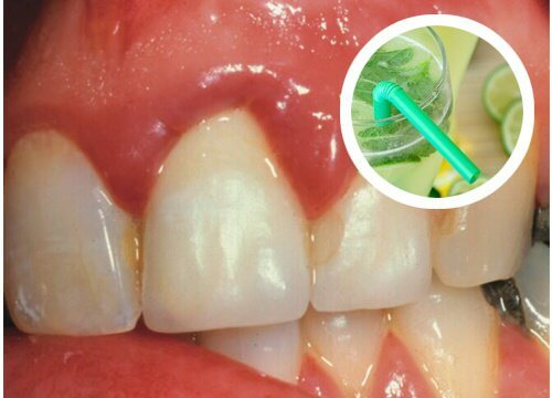 Effective Homemade Rinses for Bleeding Gums