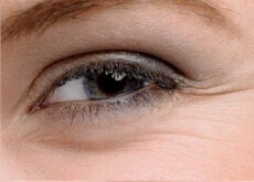 natural remedies for beautiful eyes