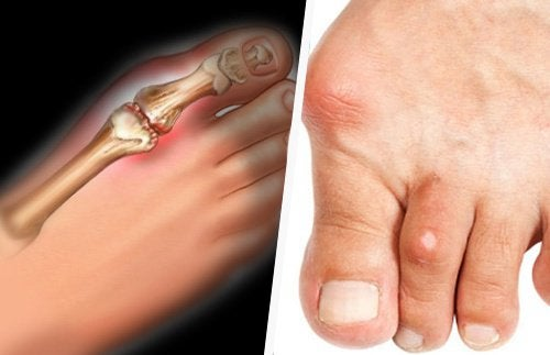 list food contain high uric acid what food causes gout symptoms best way to cure gout naturally