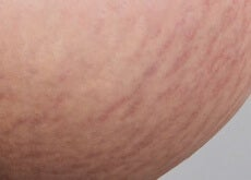 red stretch marks