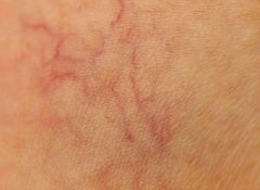 prevent spider veins
