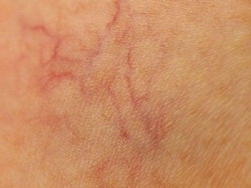 prevent spider veins