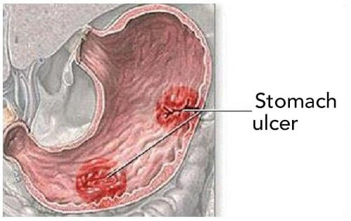 7+ Stomach Ulcer Symptoms To Be Aware Of
