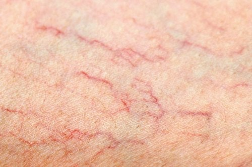 What To Do If Varicose Veins Appear