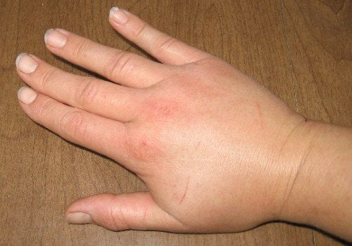A hand with fluid retention.