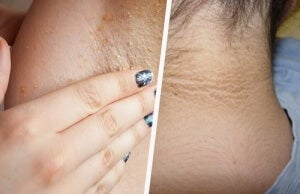 Is it Possible to Whiten Your Underarms and Neck Naturally?