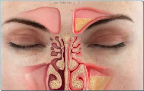 alleviate nasal congestion