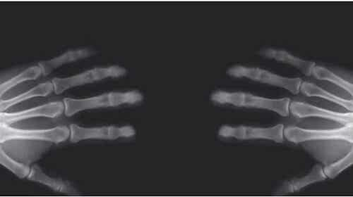 What Really Happens When You Crack Your Knuckles