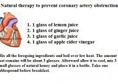 coronery arteries