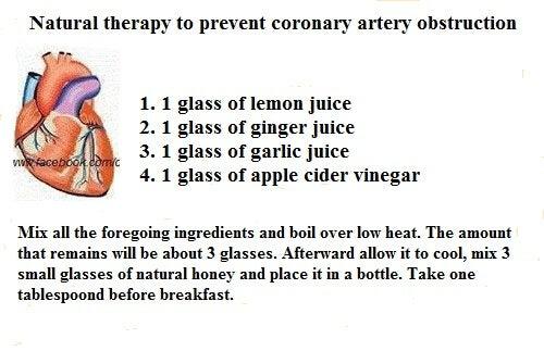 coronery arteries