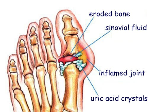 does gout cause kidney problems best vegetables for gout sufferers do you treat gout with heat or cold