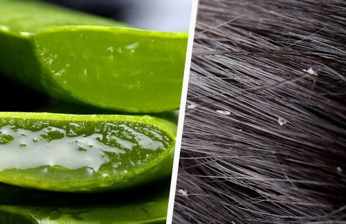 Effective Natural Dandruff Remedies
