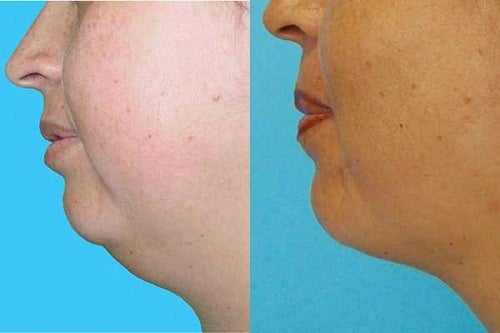 Eliminate That Double Chin without Surgery!