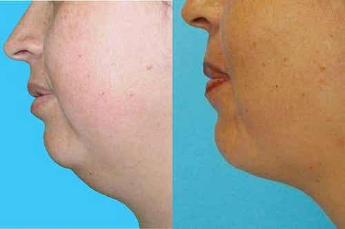 Eliminate Your Double Chin without Surgery!
