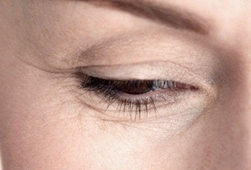wrinkles-under-the-eyes