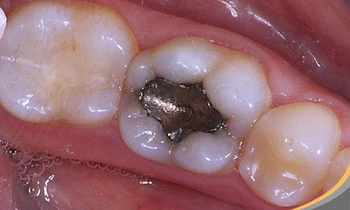 Health Risks of Amalgam Fillings