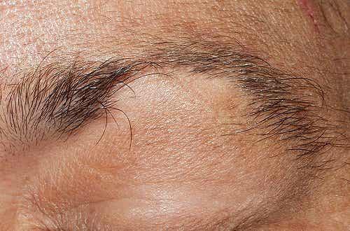 Natural Remedies for Hair Loss: Eyebrows and Eyelashes