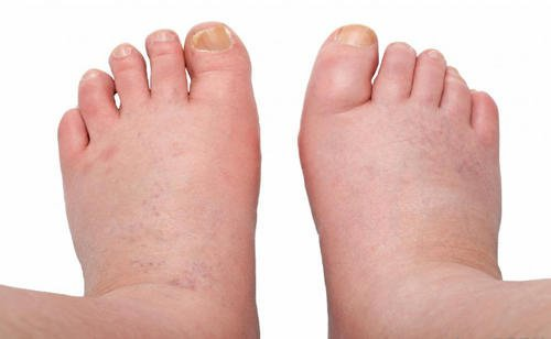 6 Remedies for Swelling in Your Ankles, Feet and Legs