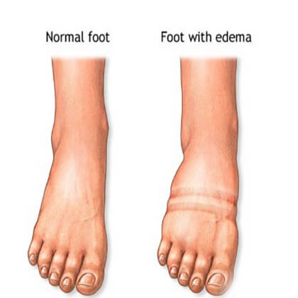 2 fluid retention
