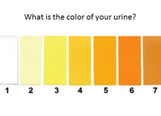 color of urine