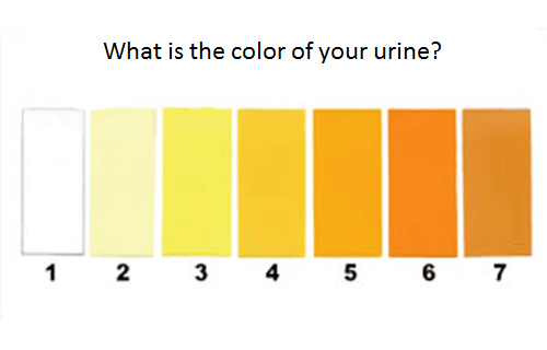 Urine color chart to determine urine color
