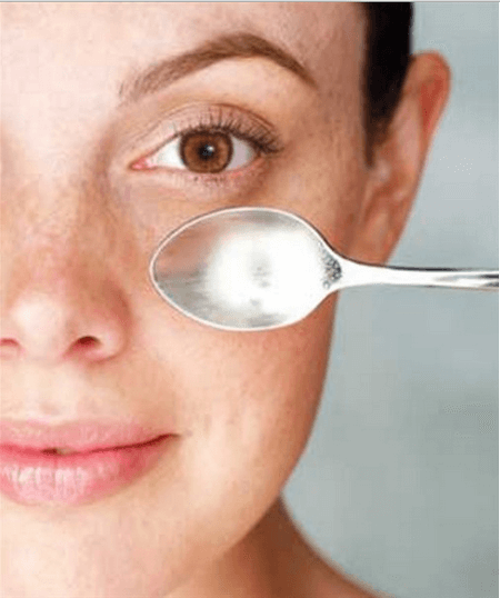 Woman doing the cold spoon treatment to reduce dark circles