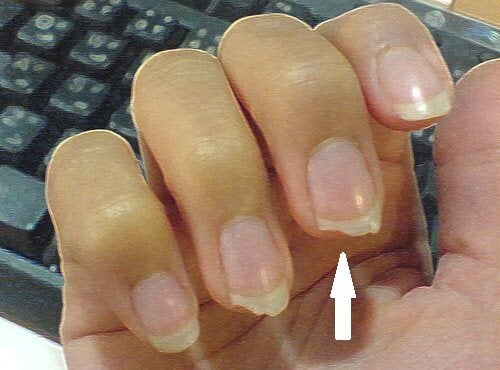 Psychosomatic Causes Many People Bite Their Nails