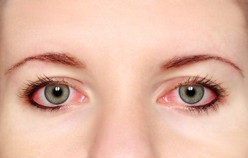 Benefits of consuming cilantro conjunctivitis pink eyes closeup