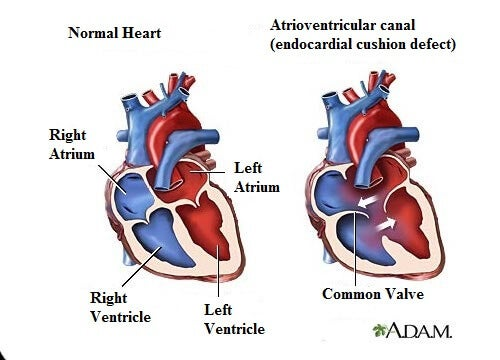 heart murmur symptoms