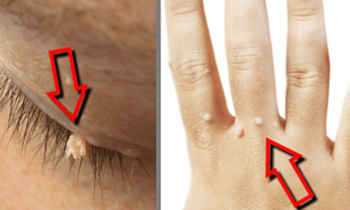 remove warts