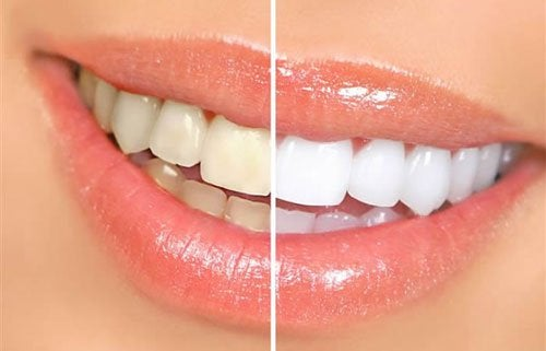 Foods that Cause Yellow Teeth