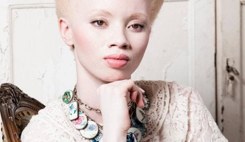 moving story of African model Thando Hopa with Albinism