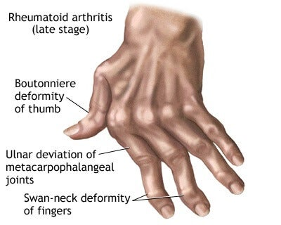 7 Natural Remedies for Arthritis in the Hands