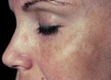 removing dark spots and blemishes