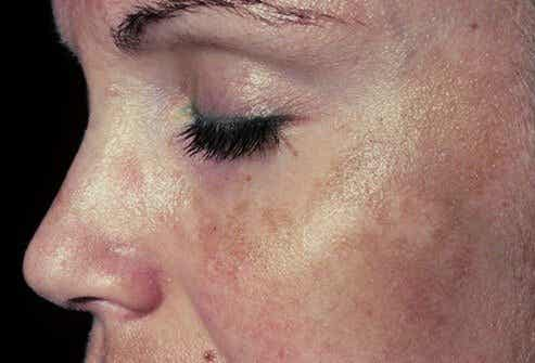 Do You Have Dark Spots? Try These 6 Remedies!