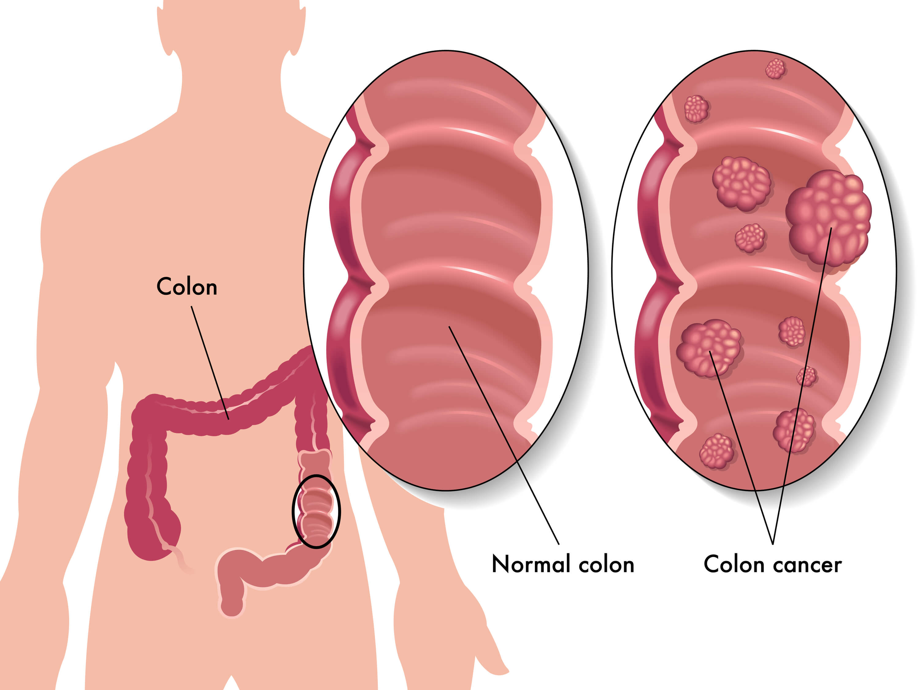5 Tips to Help Prevent Colon Cancer