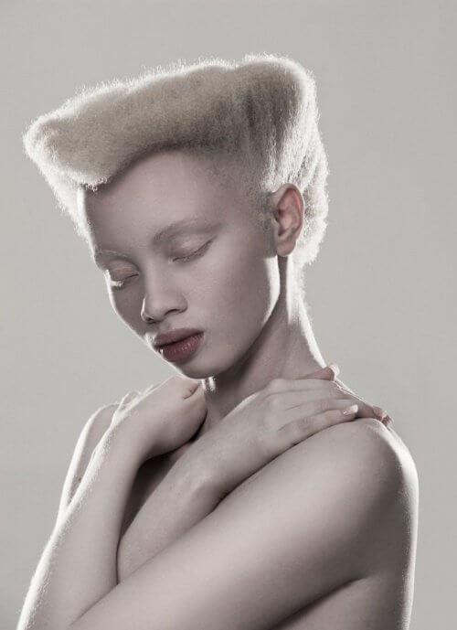 2 albino model