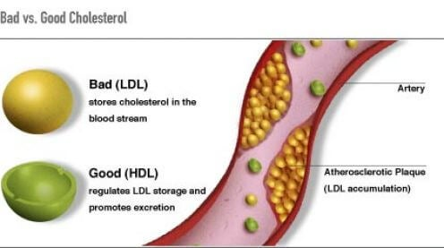 2 cholesterol