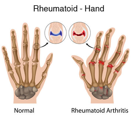 Diagram showing a normal hand vs a hand with rheumatoid arthritis